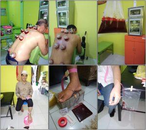 ok 4 2 300x266 - Rumah Sehat Thohiroh Pekanbaru